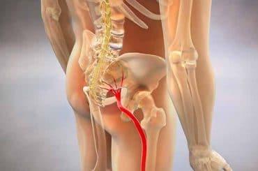 Curare la sciatalgia con l'osteopatia